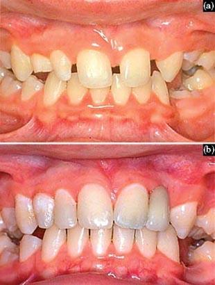 صحة الفم والأسنان تشوهات الأسنان 4 أنواع والعلاج ممكن