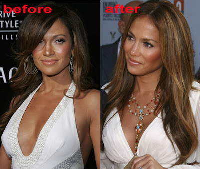 Did J Lo Breast Feed 39