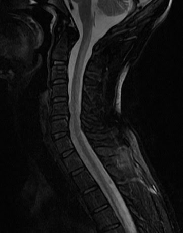 Sub-acute combined degeneration-MRI - Sumer's Radiology Blog B12 Deficiency Spinal Cord