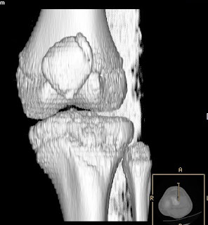 Symptomatic Bipartite Patella Mri Ct Sumer S Radiology Blog The tissue that connects the two parts of bone is called a synchondrosis. symptomatic bipartite patella mri ct