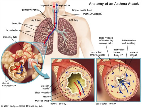 Asthma Pictures