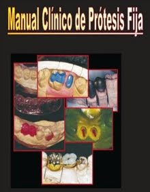 Fundamentos esenciales de protesis fija shillingburg