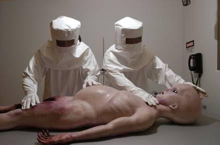 pene alieno il dottore ha bisogno di unerezione