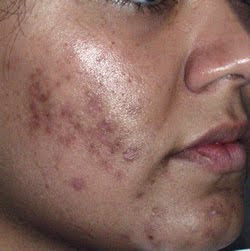 , CLEARLY DIFFERENT: ACNE TREATMENTS OPTIMIZED