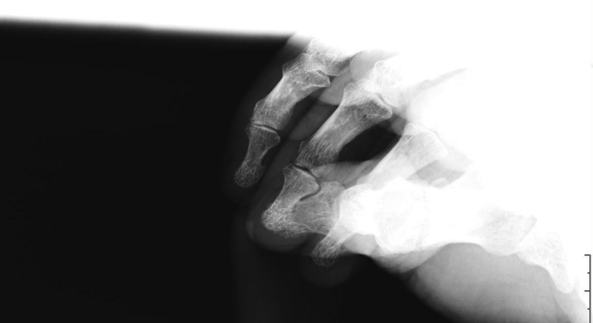 Sobre técnicas de imágenes médicas (Blog STIM): Rx de Pene en la ...
