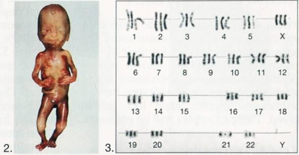 Aberrações Cromossômicas Estruturais