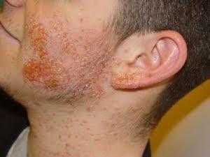 infección estafilocócica de la piel