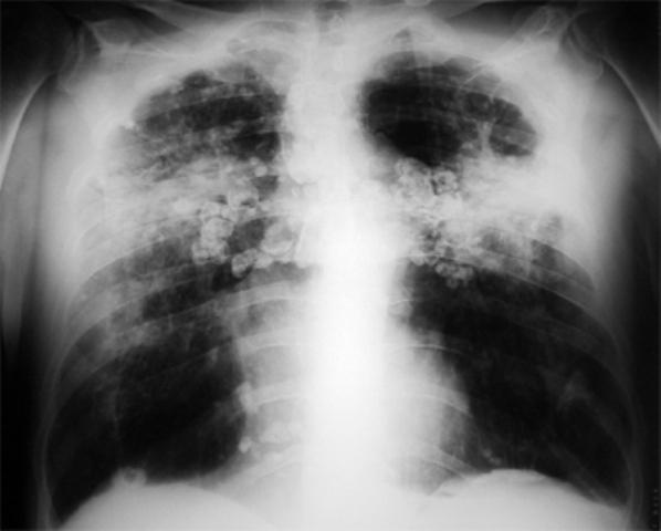 Un polvo de muerte - 3 9