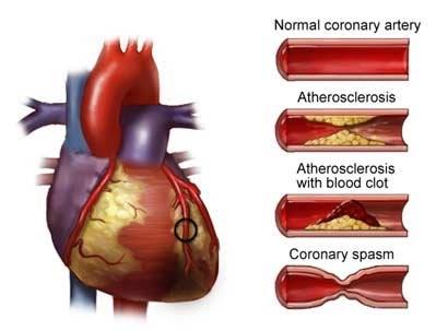 med int e geriatria infermieri ravenna: Angina cardiaca
