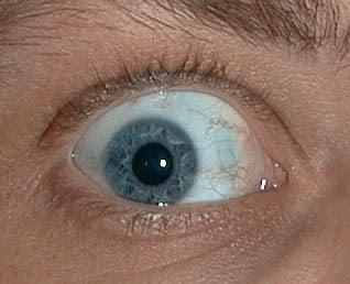 punto nero nella pupilla