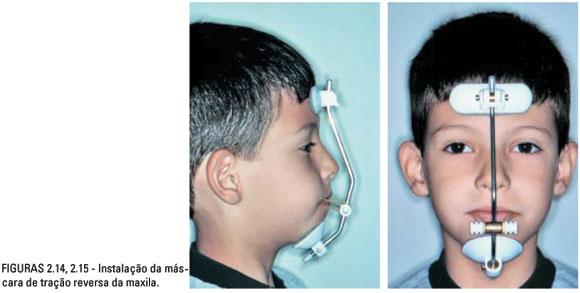 Ortodontie De Iii Oclus�o Classe M�