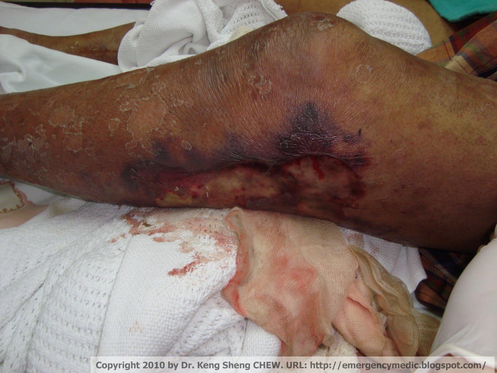Emergency Medicine Blog: Necrotizing Fasciitis