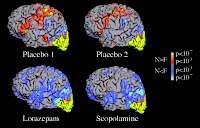 Effect of scopolamine and lorazepam on memory using fMRI