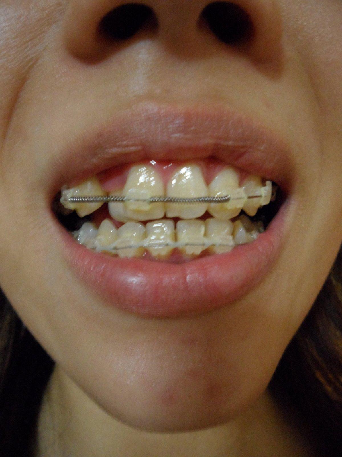 colorado adult braces jpg 1152x768