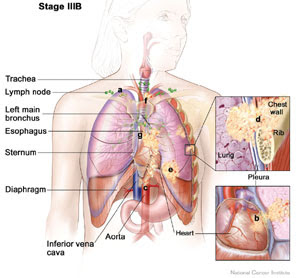 NCP Nursing Care Plans For Lung Cancers ~ Nursing Directory's