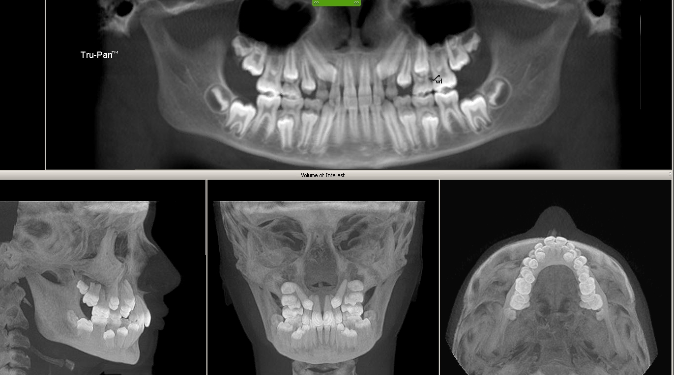 Sessions Ortho Blog 3d Cone Beam Icat X Rays