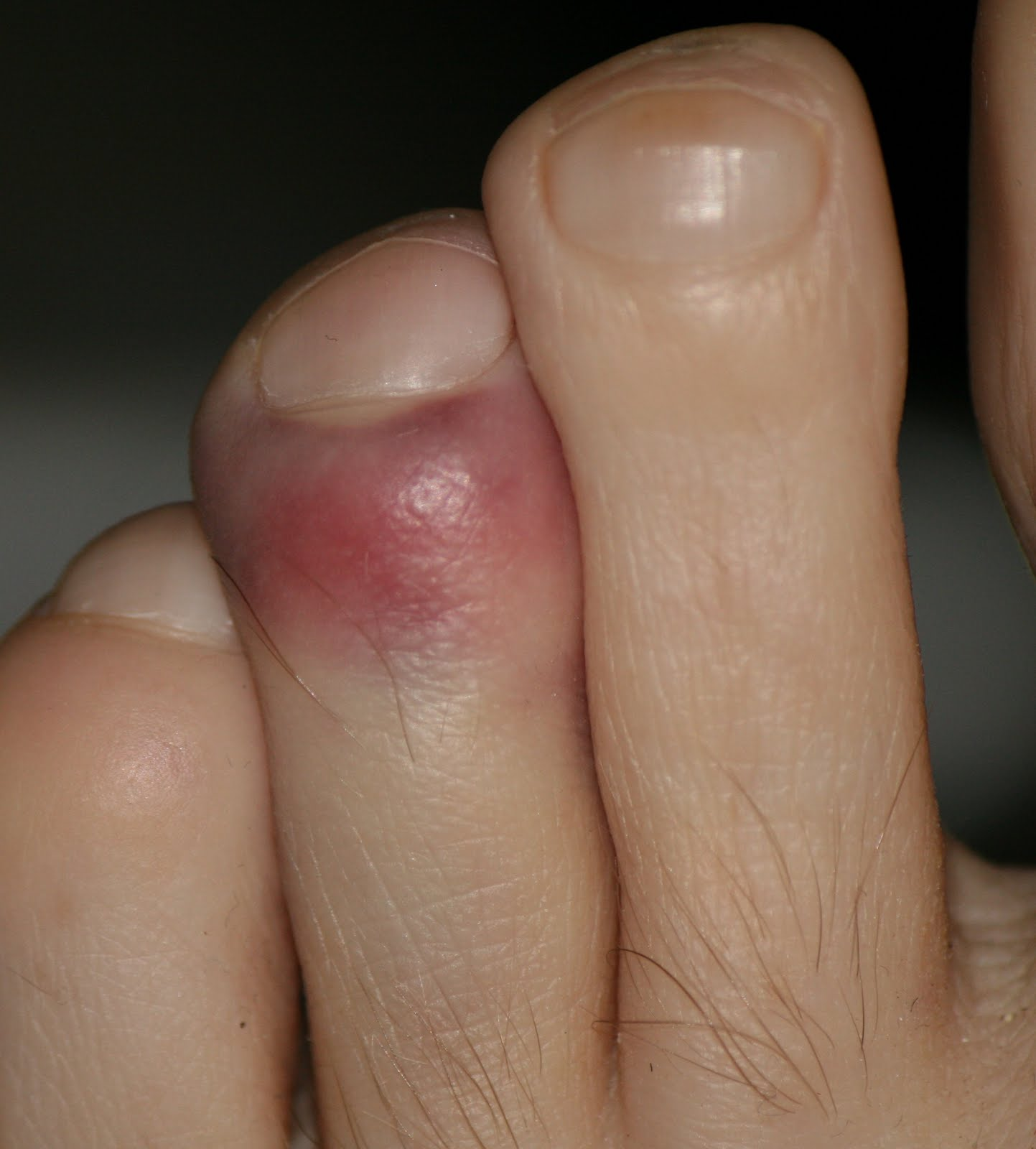 Macclads Blog: Left toe stubbed after right Ankle surgery