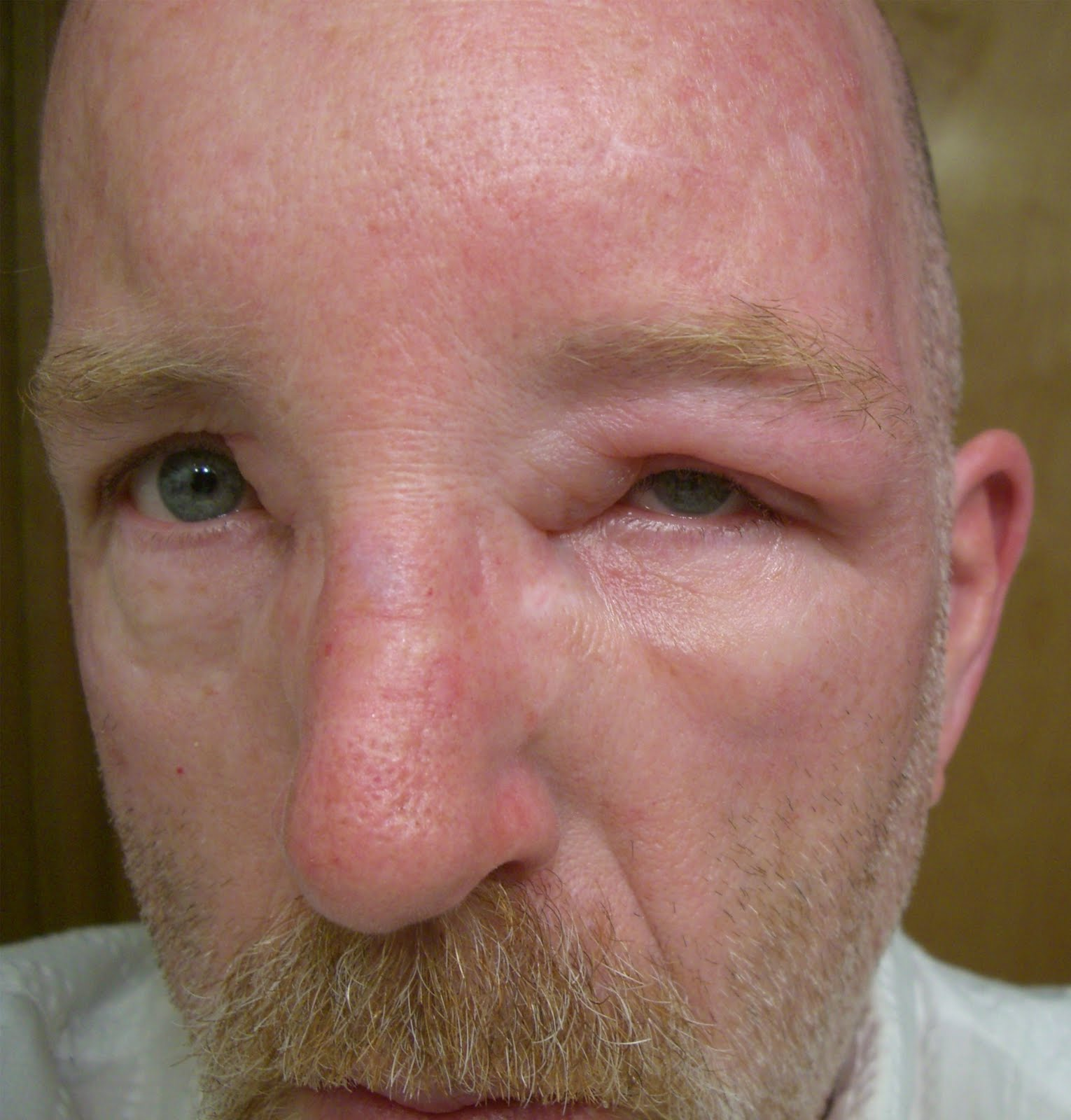 paper wasp sting reaction - photo #3